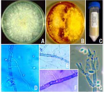 Photomontage présentant une plaque à culture, un tube à essai et des images obtenues par microscopie de l'ACM 941.