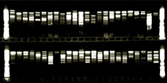 Agarose gel showing banding pattern of DNA amplification product.